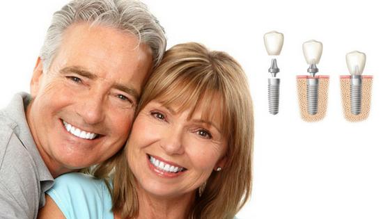Implantul dentar – top 10 beneficii pe care trebuie sa le cunosti